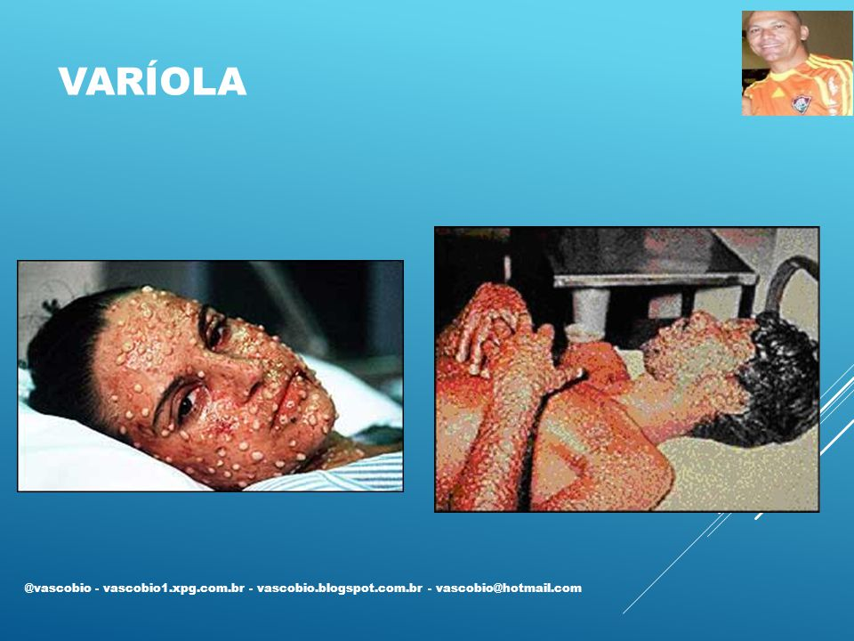 Varíola @vascobio - vascobio1.xpg.com.br - vascobio.blogspot.com.br - vascobio@hotmail.com