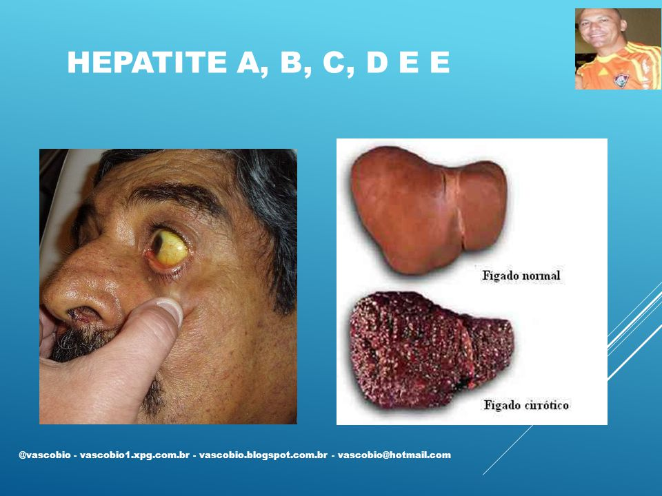 Hepatite A, B, C, D e E @vascobio - vascobio1.xpg.com.br - vascobio.blogspot.com.br - vascobio@hotmail.com.