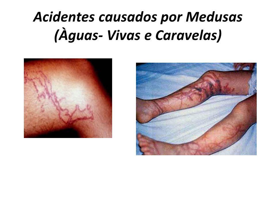 Acidentes causados por Medusas (Àguas- Vivas e Caravelas)