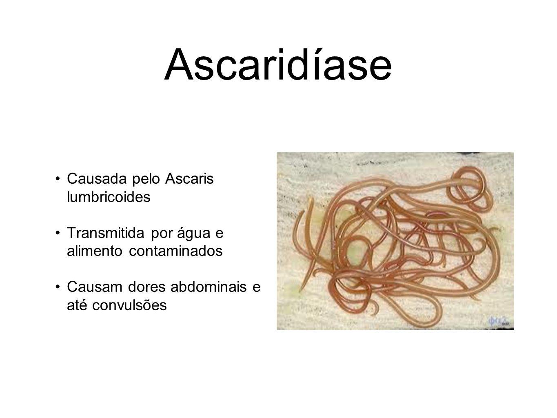 Ascaridíase Causada pelo Ascaris lumbricoides