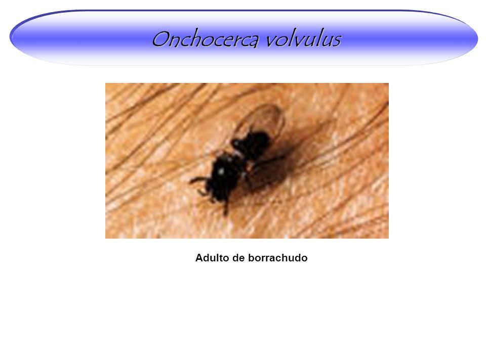 Onchocerca volvulus Adulto de borrachudo