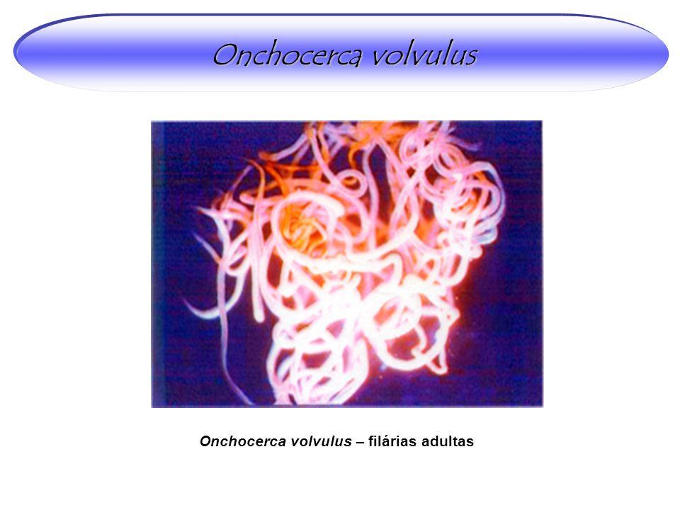 Onchocerca volvulus Onchocerca volvulus – filárias adultas