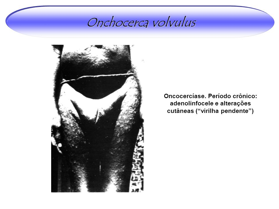 Onchocerca volvulus Oncocercíase.