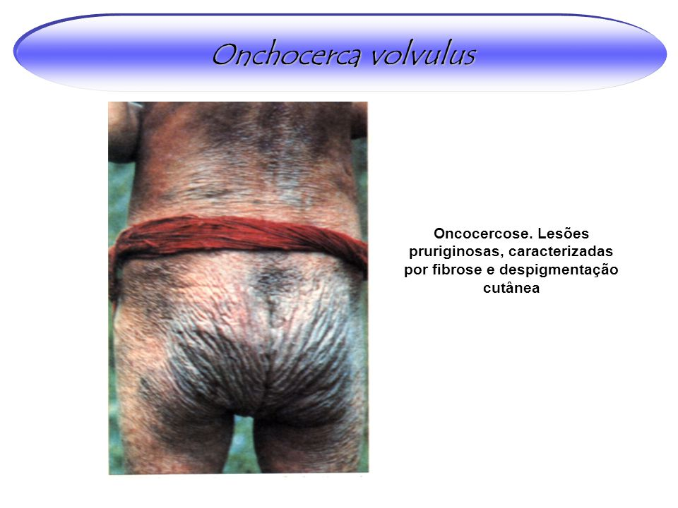 Onchocerca volvulus Oncocercose.