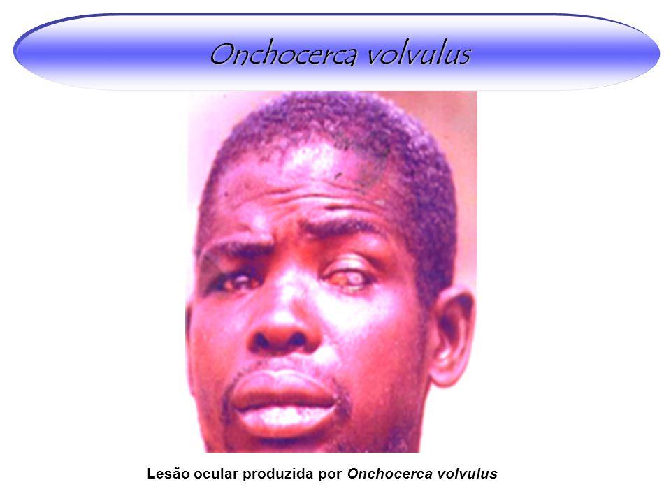 Onchocerca volvulus Lesão ocular produzida por Onchocerca volvulus