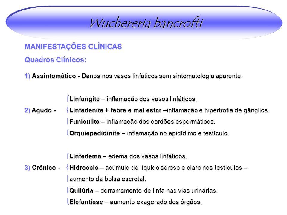 Wuchereria bancrofti MANIFESTAÇÕES CLÍNICAS Quadros Clínicos: