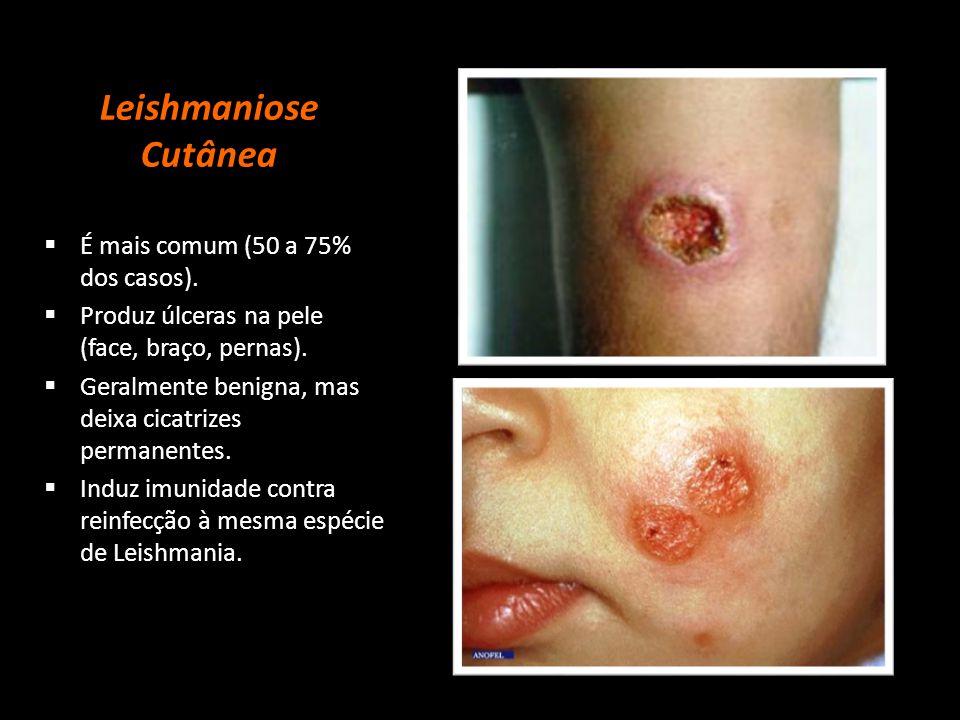 Leishmaniose Cutânea É mais comum (50 a 75% dos casos).