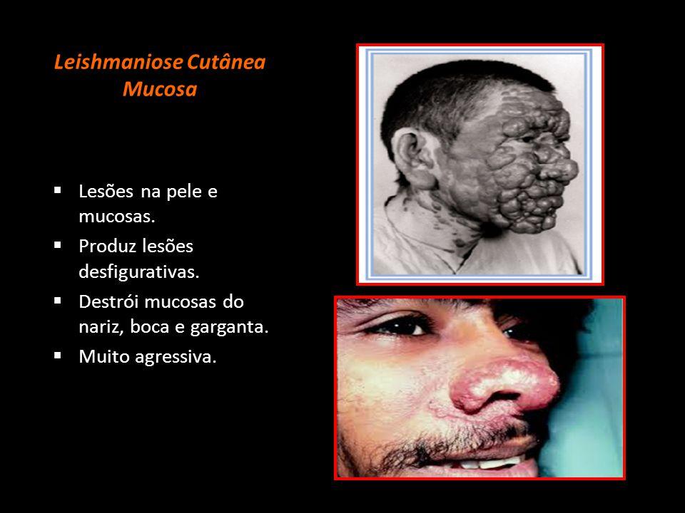 Leishmaniose Cutânea Mucosa