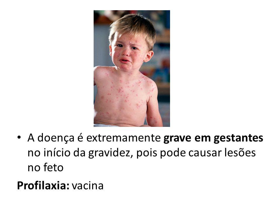 A doença é extremamente grave em gestantes no início da gravidez, pois pode causar lesões no feto