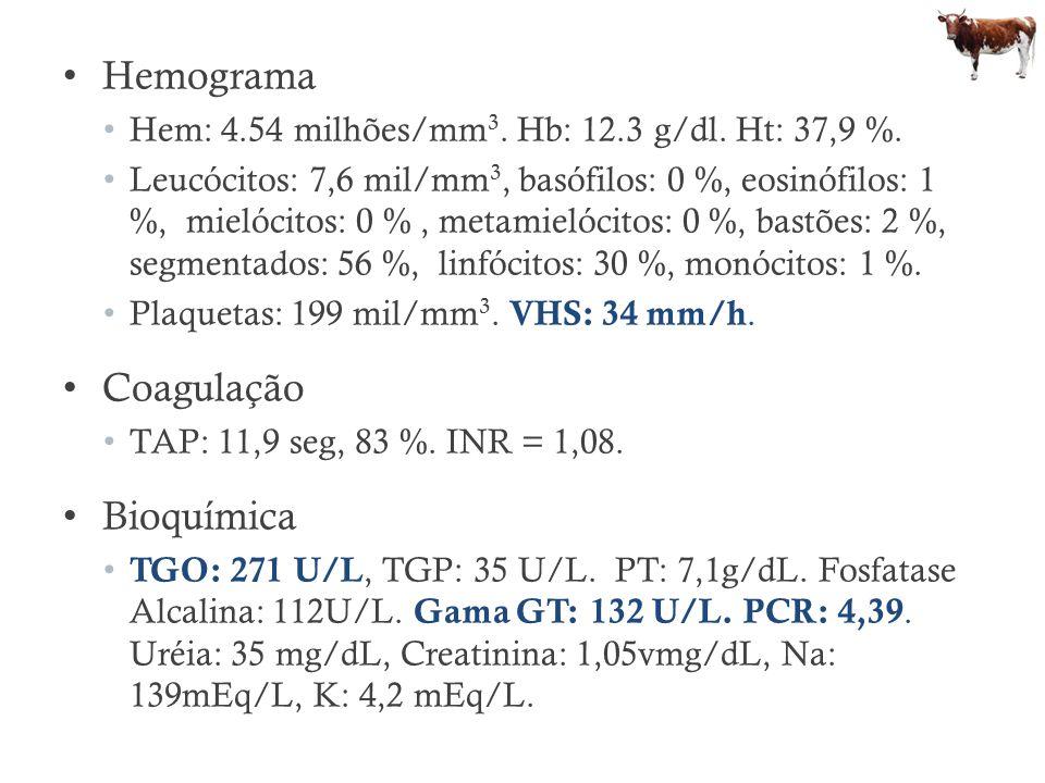 Hemograma Coagulação Bioquímica