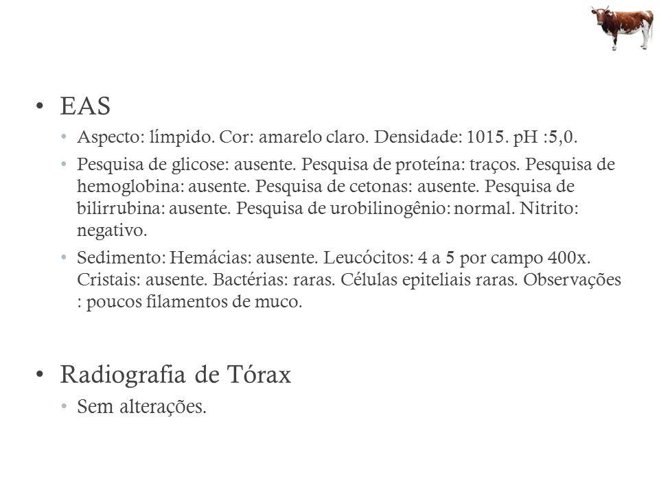 EAS Radiografia de Tórax Sem alterações.