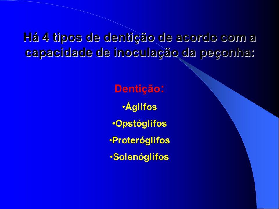 Há 4 tipos de dentição de acordo com a capacidade de inoculação da peçonha: