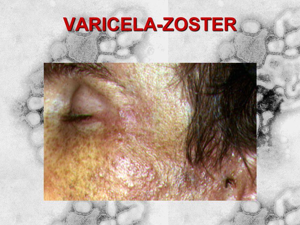 VARICELA-ZOSTER