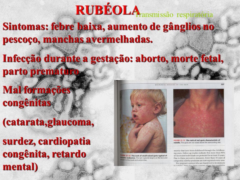 RUBÉOLA Transmissão respiratória. Sintomas: febre baixa, aumento de gânglios no pescoço, manchas avermelhadas.