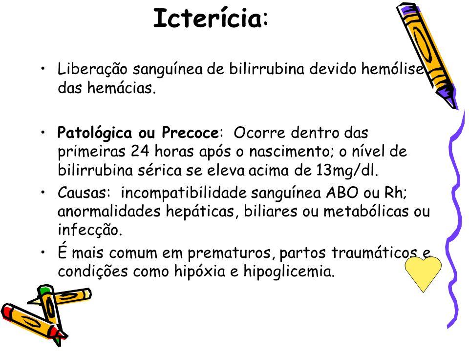 Icterícia: Liberação sanguínea de bilirrubina devido hemólise das hemácias.