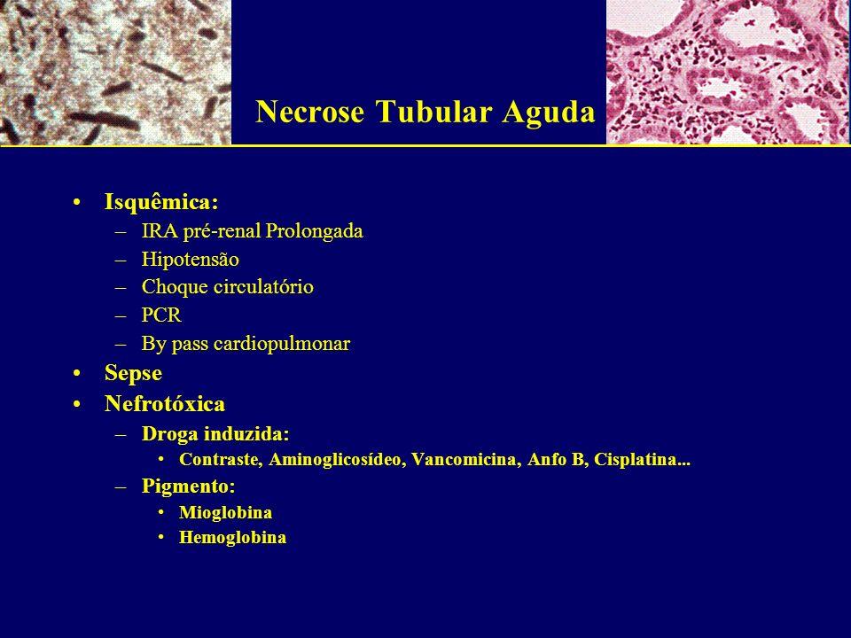 Necrose Tubular Aguda Isquêmica: Sepse Nefrotóxica