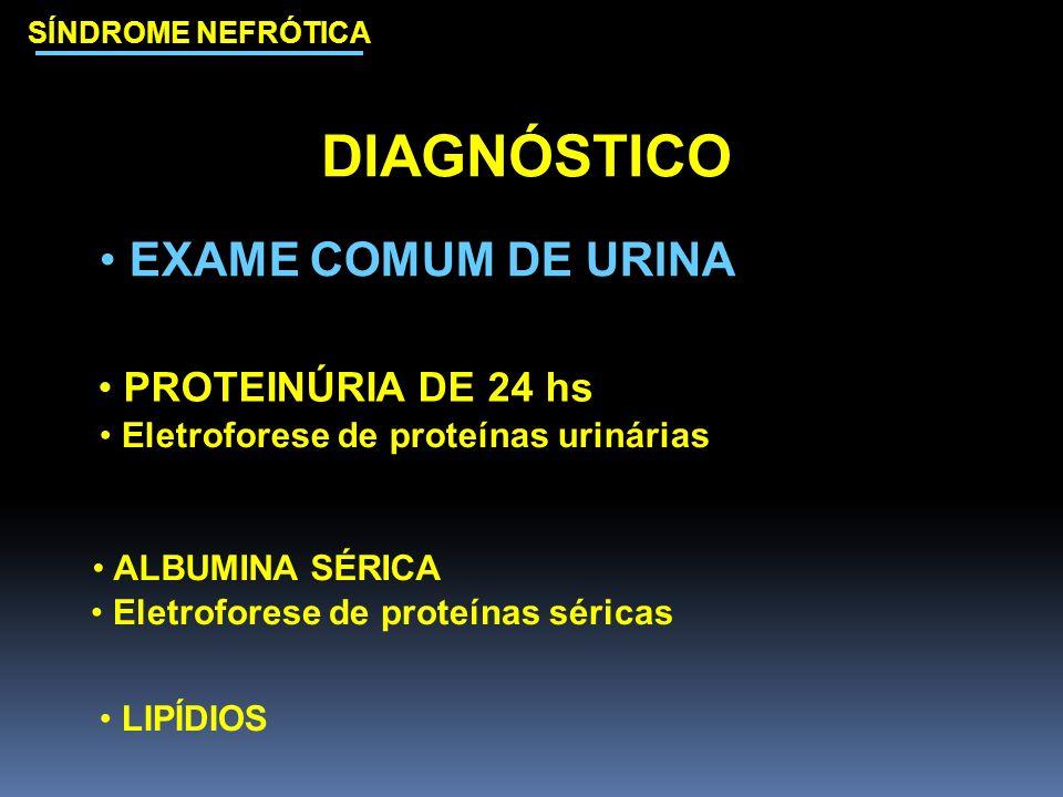DIAGNÓSTICO EXAME COMUM DE URINA PROTEINÚRIA DE 24 hs