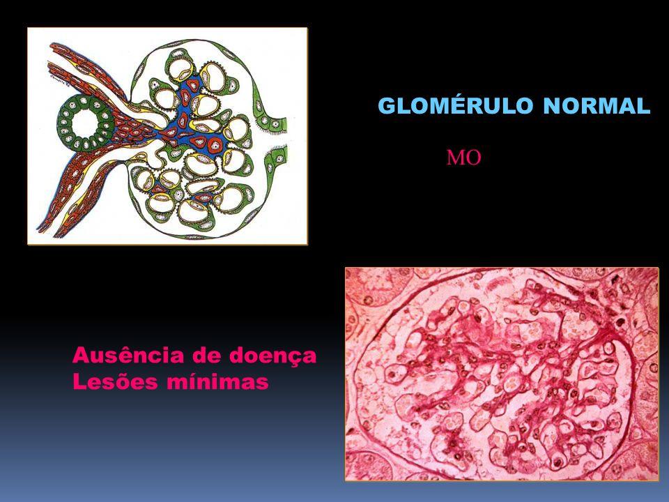 FIGURA GLOMÉRULO NORMAL MO Ausência de doença Lesões mínimas