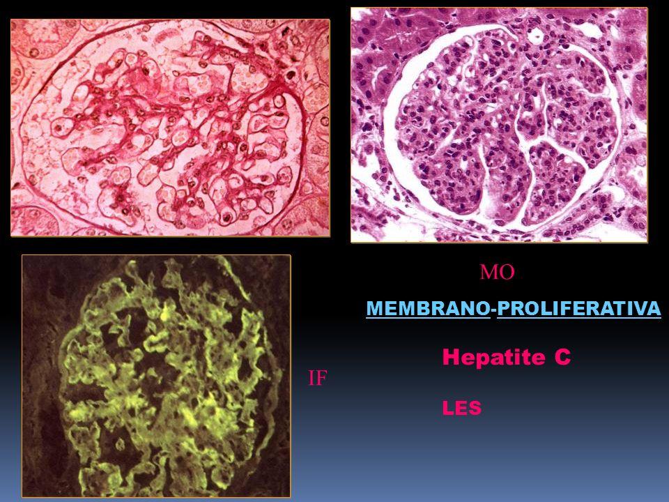 MO FIGURA MEMBRANO-PROLIFERATIVA Hepatite C LES IF