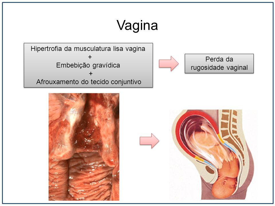 Vagina Hipertrofia da musculatura lisa vagina + Embebição gravídica
