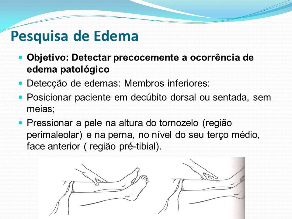 Pesquisa de Edema Objetivo: Detectar precocemente a ocorrência de edema patológico. Detecção de edemas: Membros inferiores: