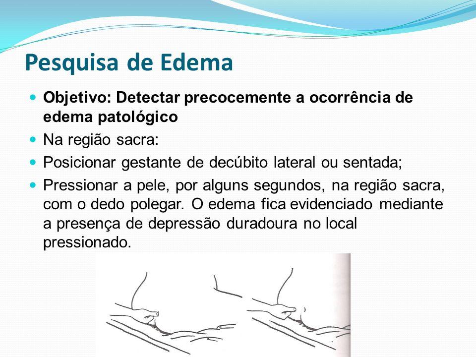 Pesquisa de Edema Objetivo: Detectar precocemente a ocorrência de edema patológico. Na região sacra: