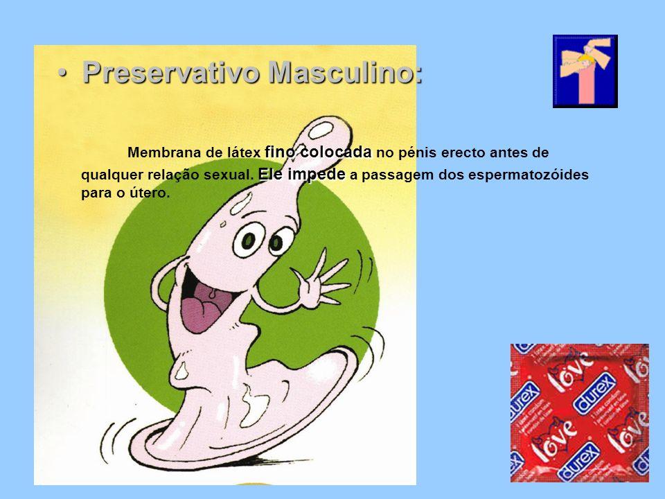 Preservativo Masculino: