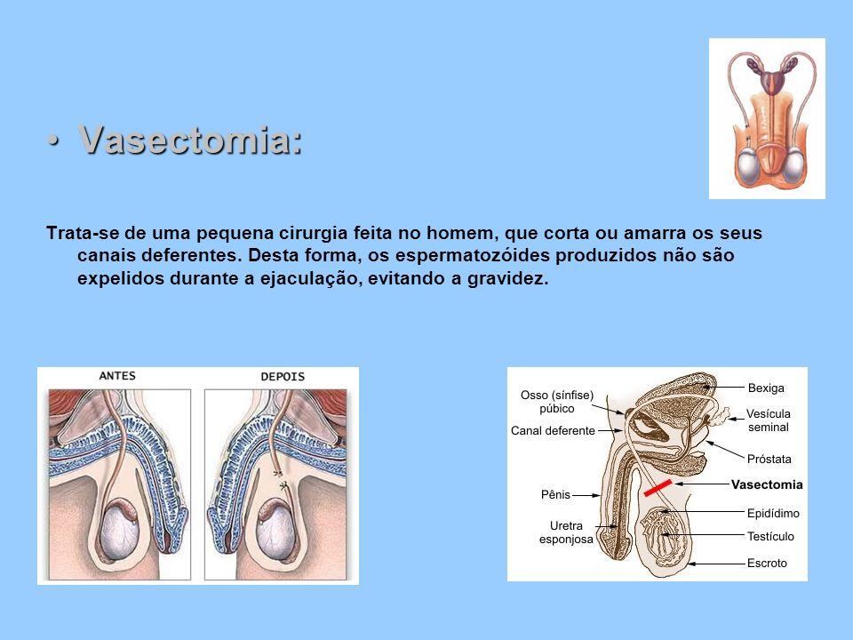 Vasectomia: