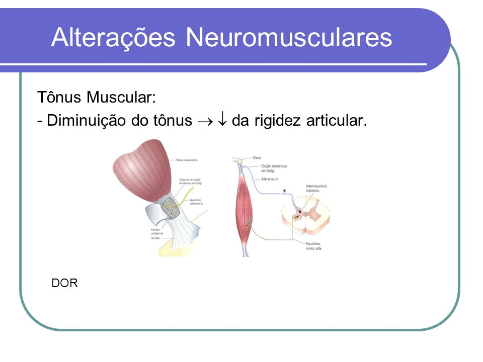 Alterações Neuromusculares