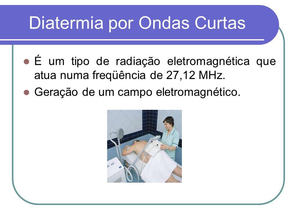 Diatermia por Ondas Curtas