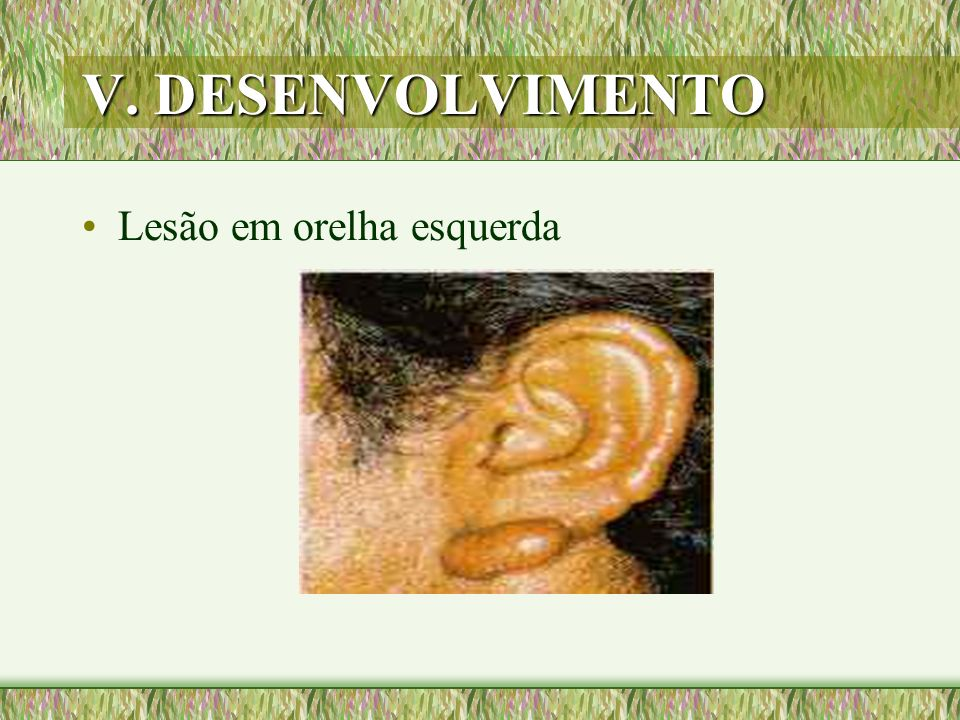 V. DESENVOLVIMENTO Lesão em orelha esquerda