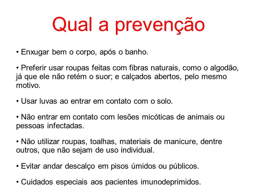 Qual a prevenção • Enxugar bem o corpo, após o banho.
