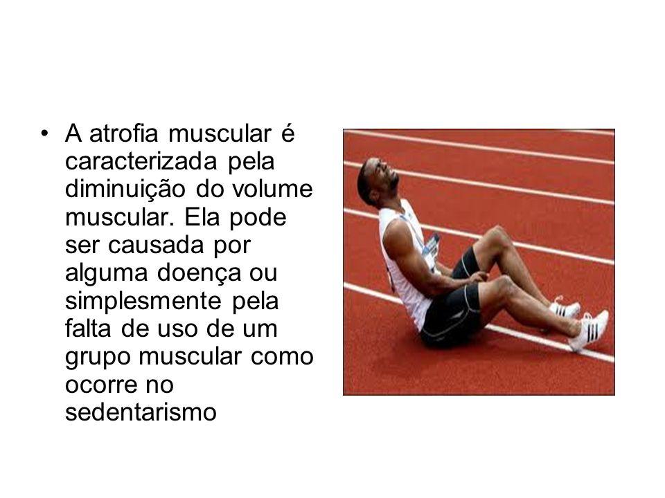 A atrofia muscular é caracterizada pela diminuição do volume muscular