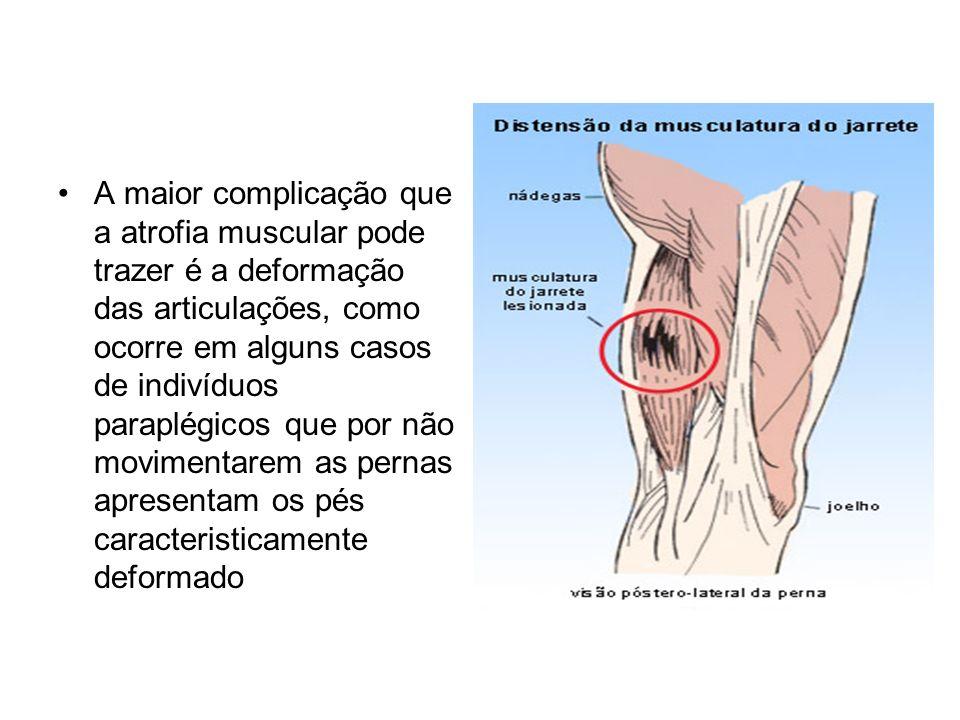 A maior complicação que a atrofia muscular pode trazer é a deformação das articulações, como ocorre em alguns casos de indivíduos paraplégicos que por não movimentarem as pernas apresentam os pés caracteristicamente deformado
