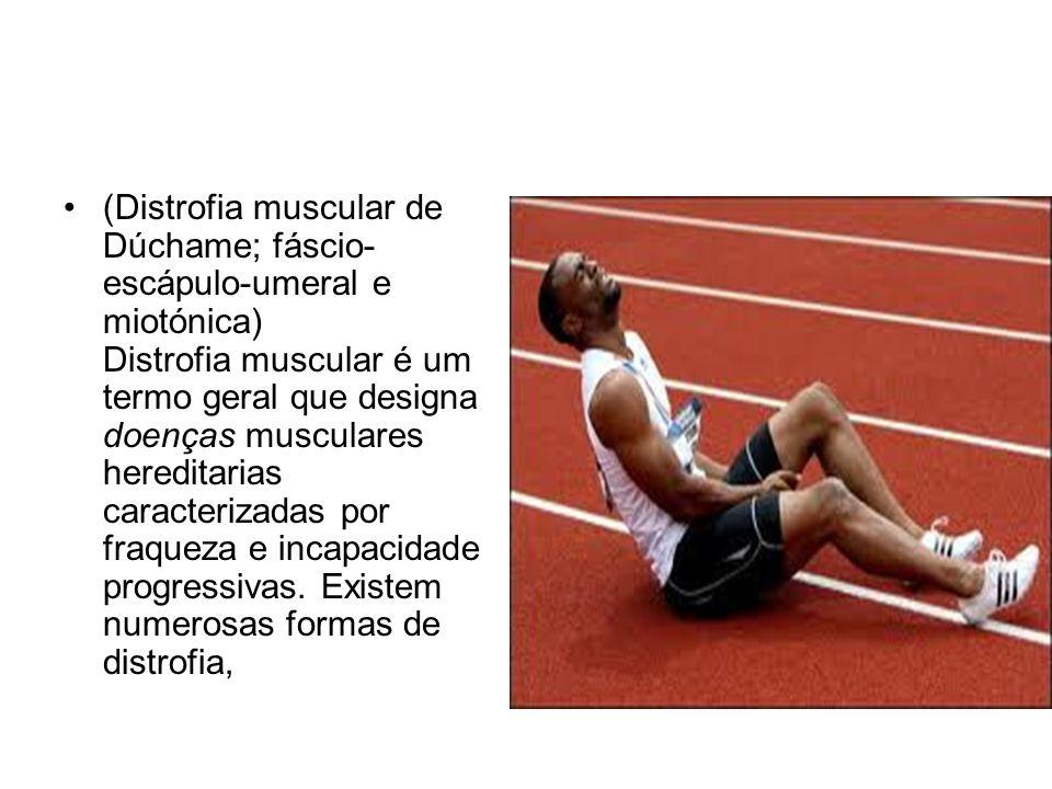(Distrofia muscular de Dúchame; fáscio-escápulo-umeral e miotónica) Distrofia muscular é um termo geral que designa doenças musculares hereditarias caracterizadas por fraqueza e incapacidade progressivas.