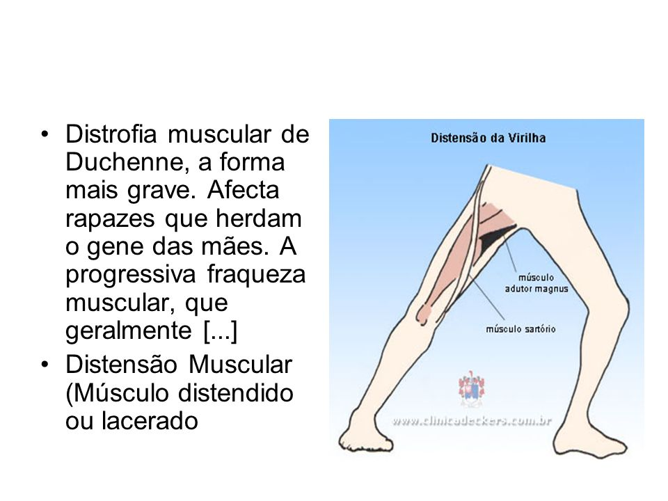 Distrofia muscular de Duchenne, a forma mais grave