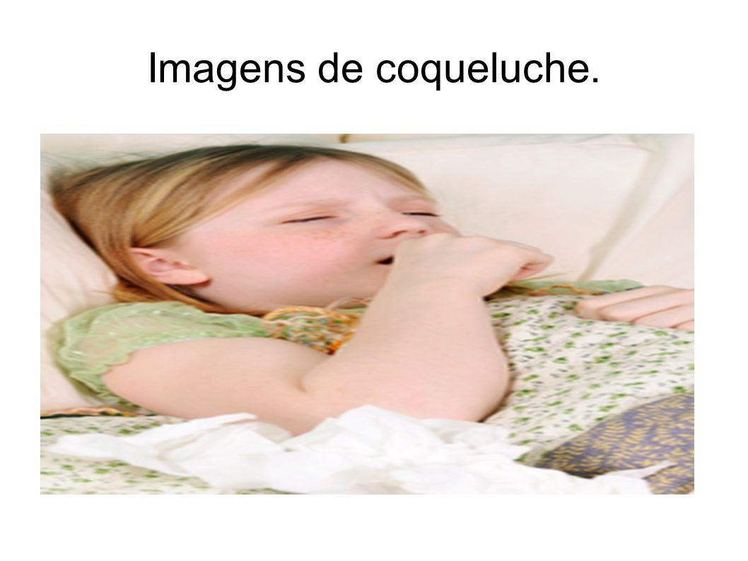 Imagens de coqueluche.