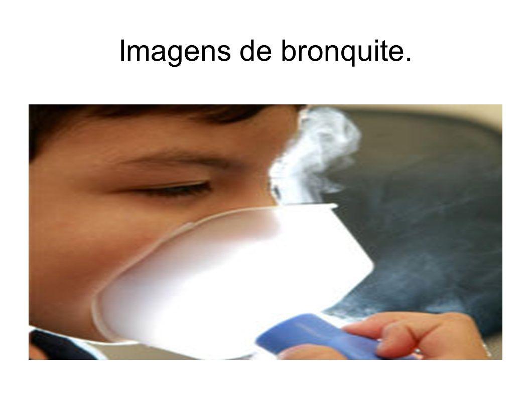 Imagens de bronquite.