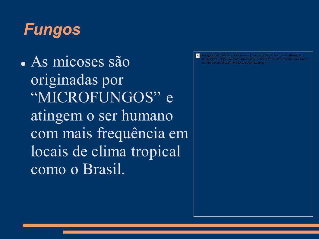 Fungos As micoses são originadas por MICROFUNGOS e atingem o ser humano com mais frequência em locais de clima tropical como o Brasil.