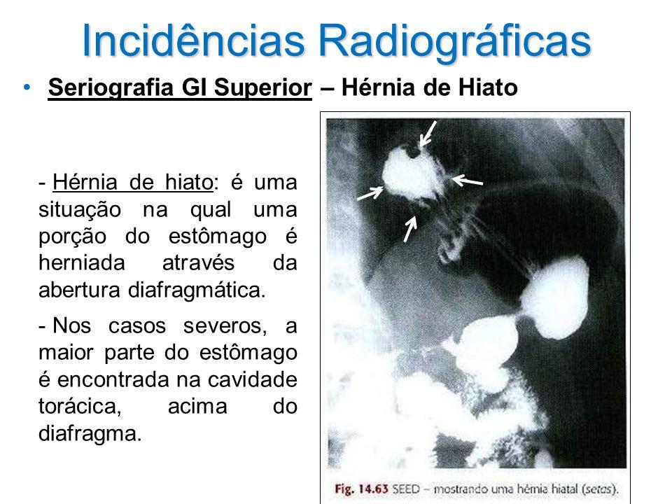 Incidências Radiográficas