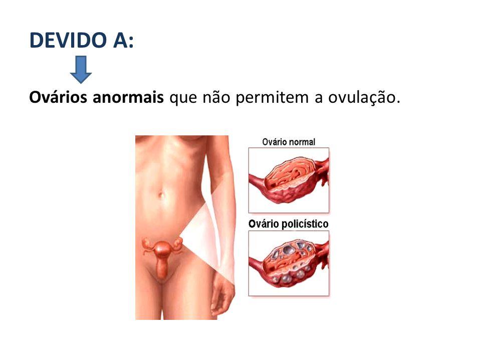 DEVIDO A: Ovários anormais que não permitem a ovulação.