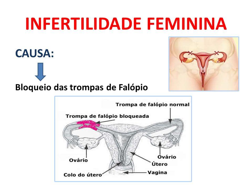 INFERTILIDADE FEMININA