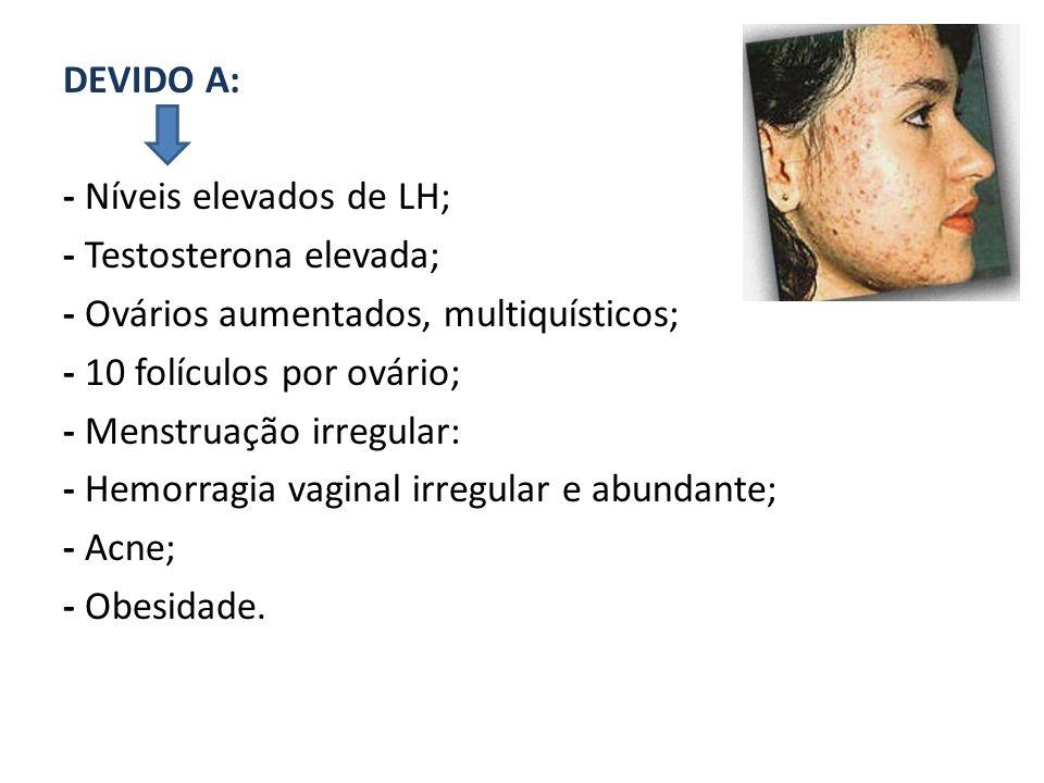 DEVIDO A: - Níveis elevados de LH; - Testosterona elevada; - Ovários aumentados, multiquísticos; - 10 folículos por ovário;