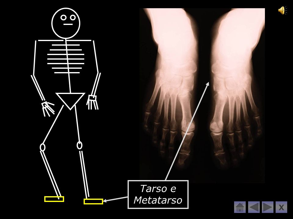 Tarso e Metatarso X