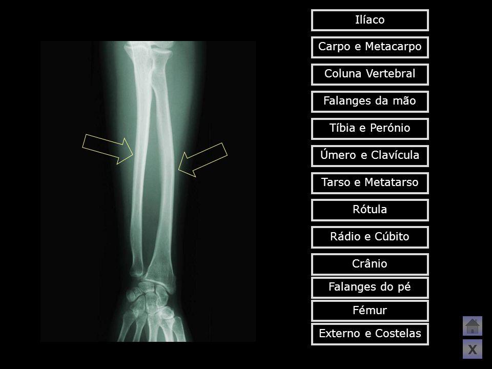X Ilíaco Carpo e Metacarpo Coluna Vertebral Falanges da mão