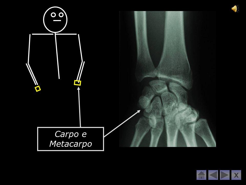 Carpo e Metacarpo X