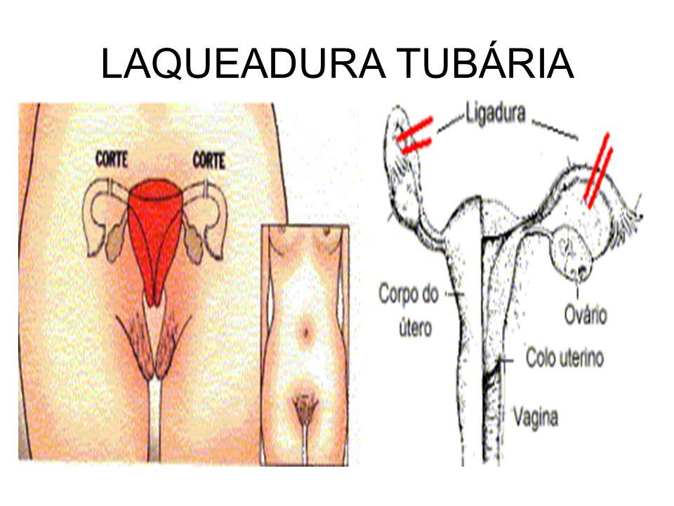 LAQUEADURA TUBÁRIA