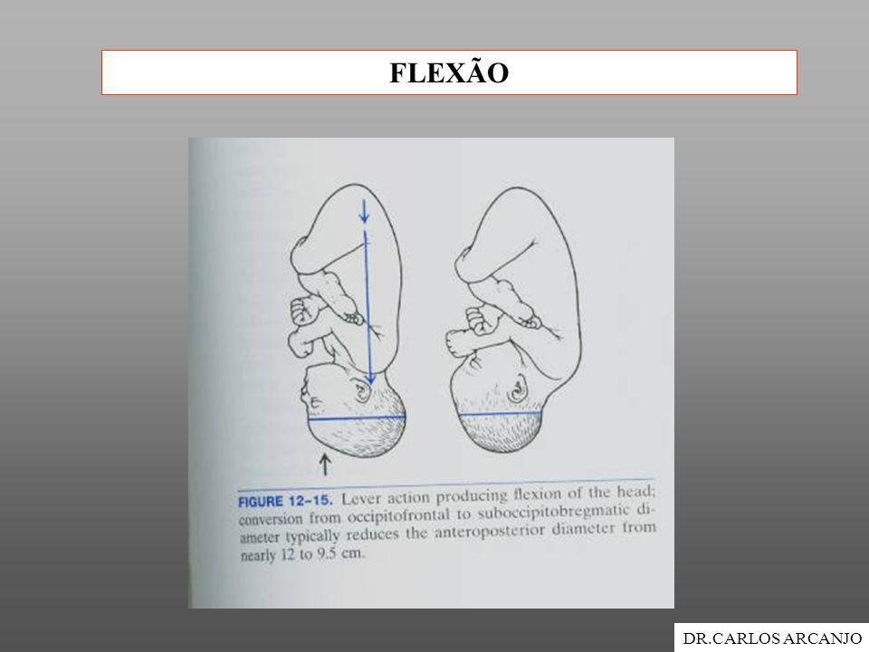 FLEXÃO DR.CARLOS ARCANJO