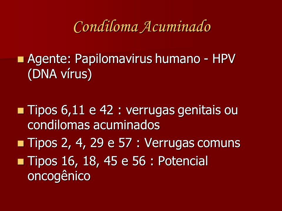 Condiloma Acuminado Agente: Papilomavirus humano - HPV (DNA vírus)
