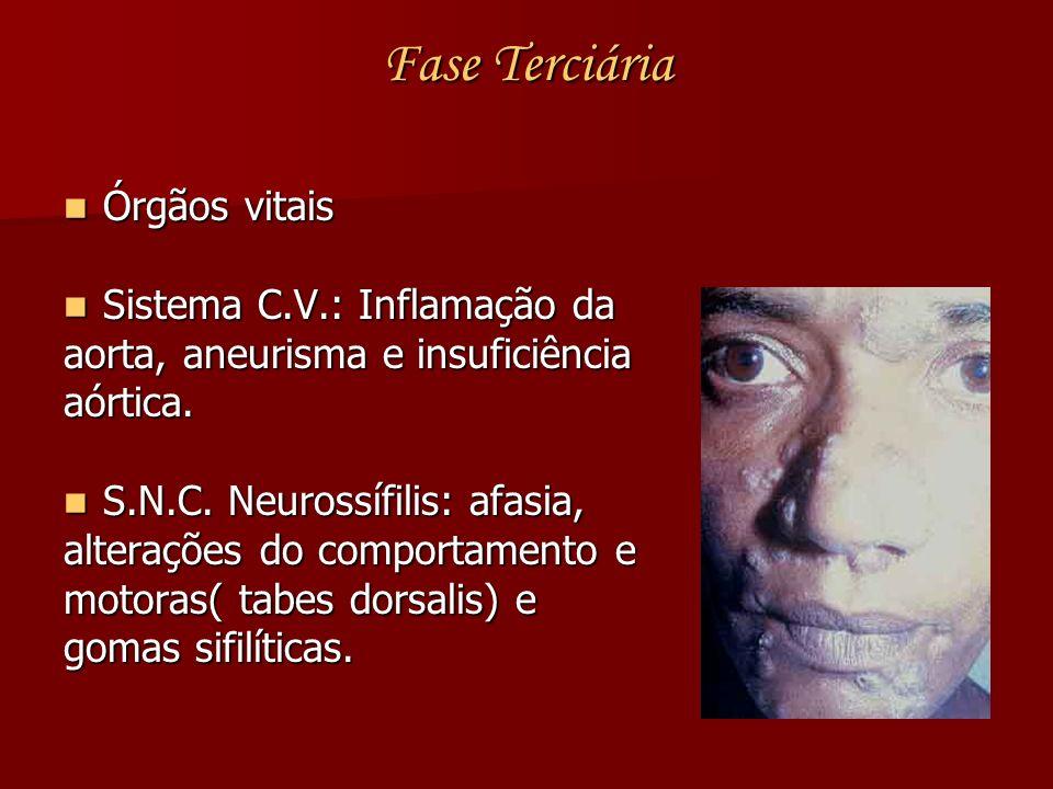 Fase Terciária Órgãos vitais Sistema C.V.: Inflamação da